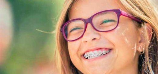 брекеты, лечение зубов